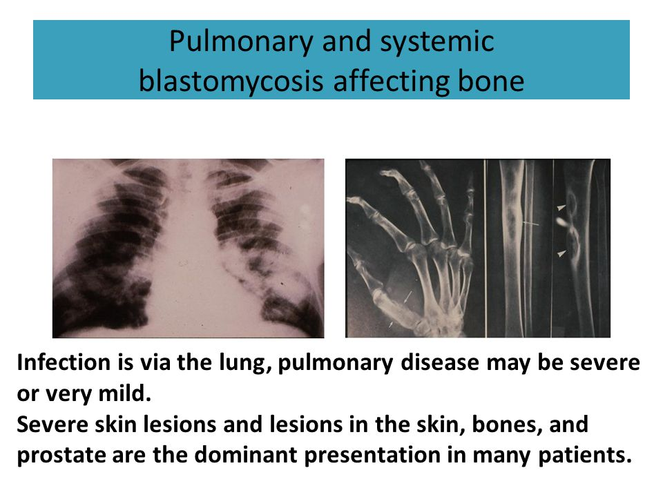 Pulmonary and systemic blastomycosis affecting bone