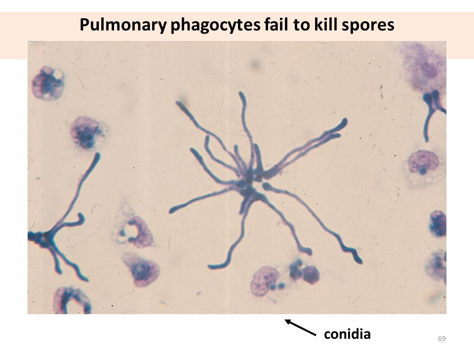Pulmonary phagocytes fail to kill spores in presence of high dose steroid treatment