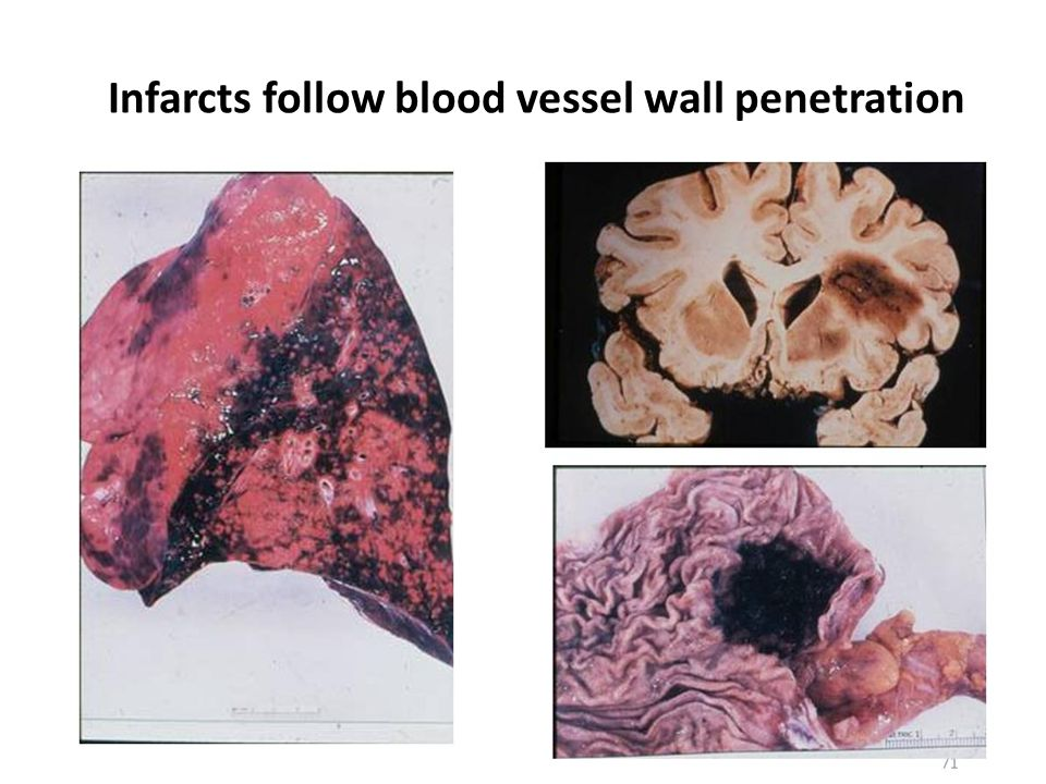 Infarcts follow blood vessel wall penetration