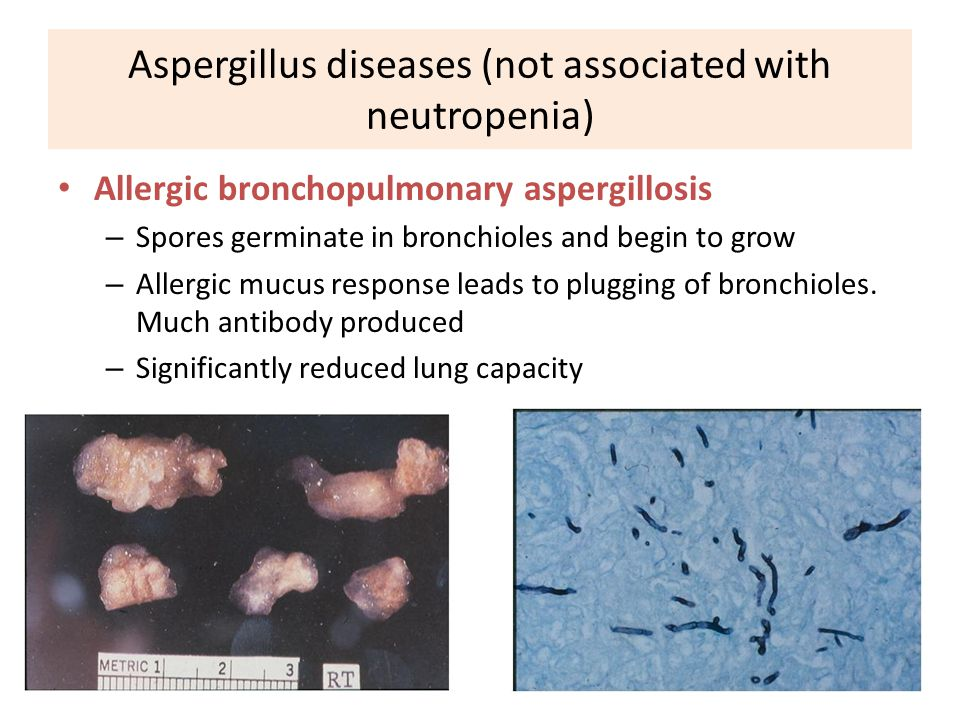 Aspergillus diseases (not associated with neutropenia)