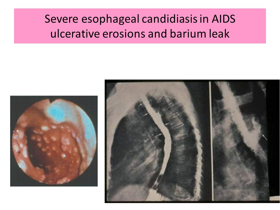 Severe esophageal candidiasis in AIDS ulcerative erosions and barium leak