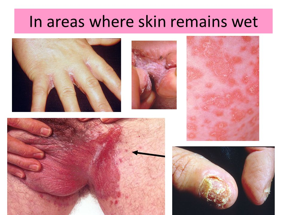 In areas where skin remains wet