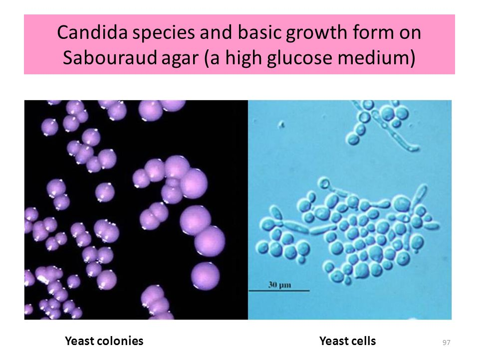 PF Lehmann Mycology October 16, 2008. Candida species and basic growth form on Sabouraud agar (a high glucose medium)