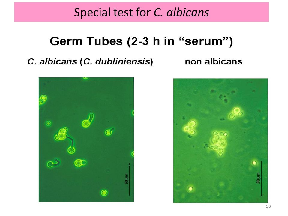 Special test for C. albicans