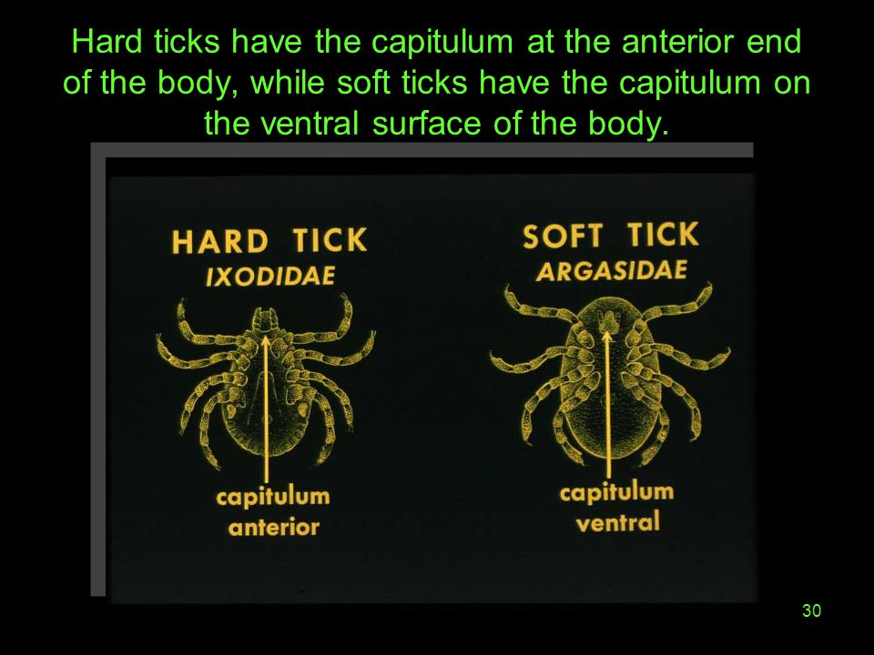 Hard ticks have the capitulum at the anterior end of the body, while soft ticks have the capitulum on the ventral surface of the body.