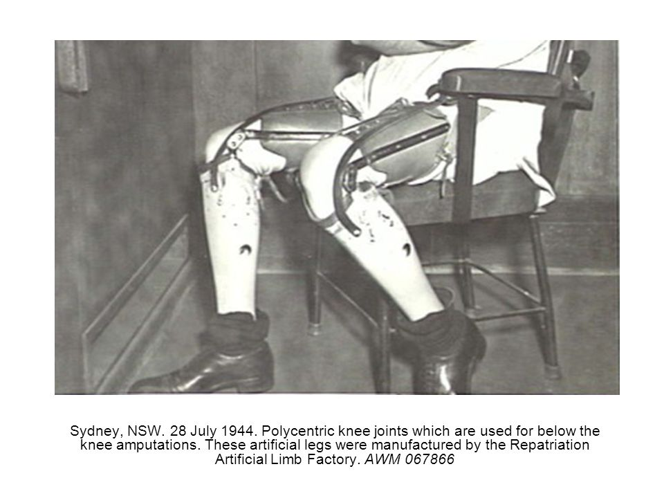 Sydney, NSW. 28 July 1944. Polycentric knee joints which are used for below the knee amputations.