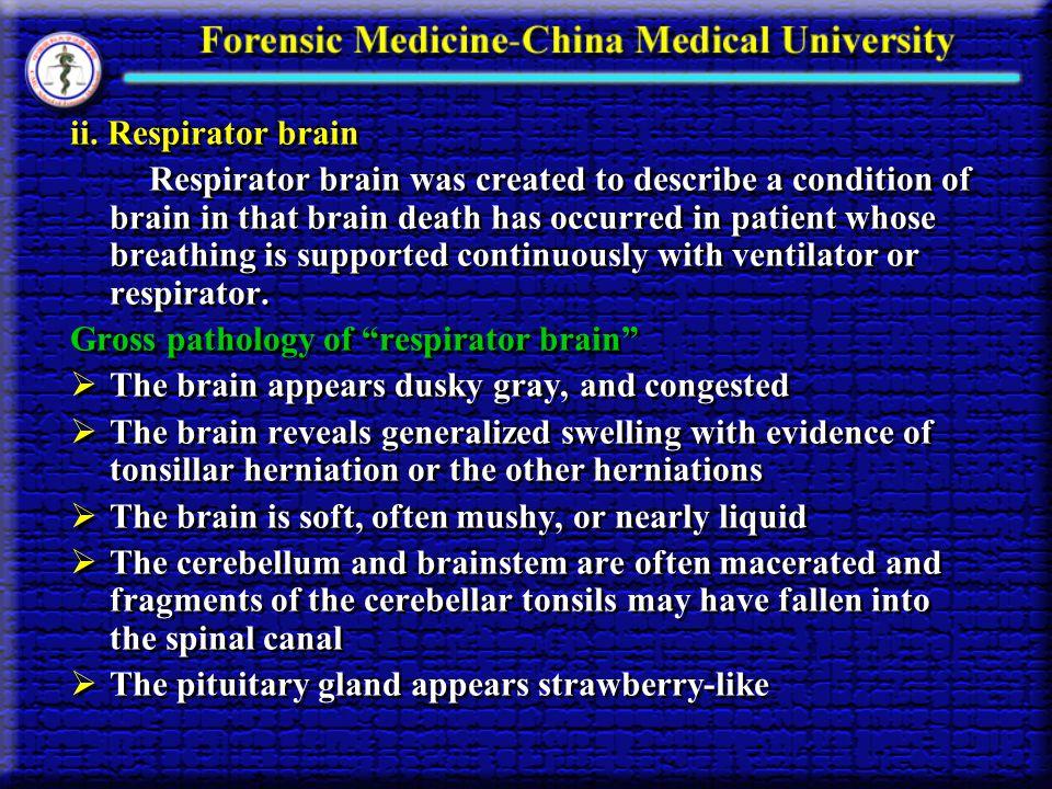 ii. Respirator brain