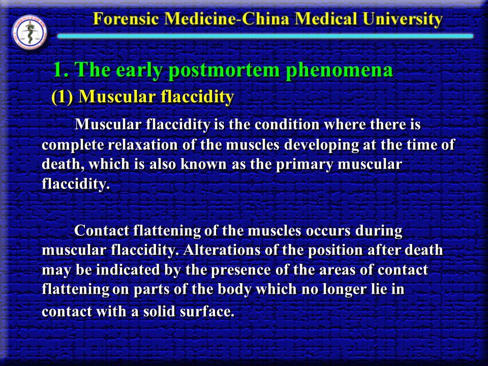 1. The early postmortem phenomena
