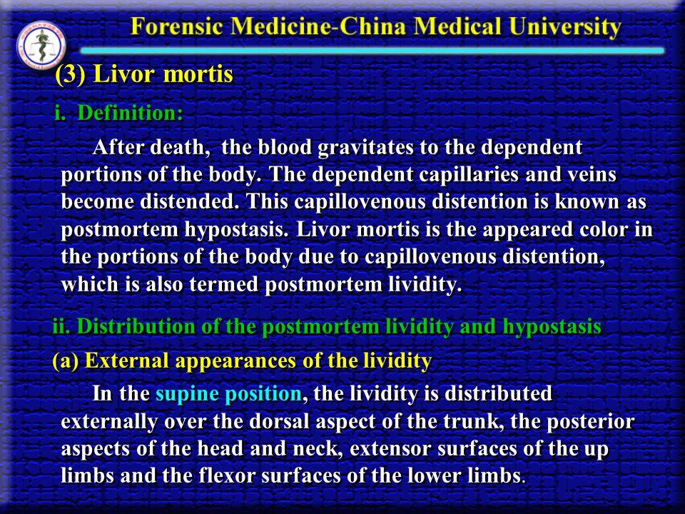 (3) Livor mortis i. Definition: