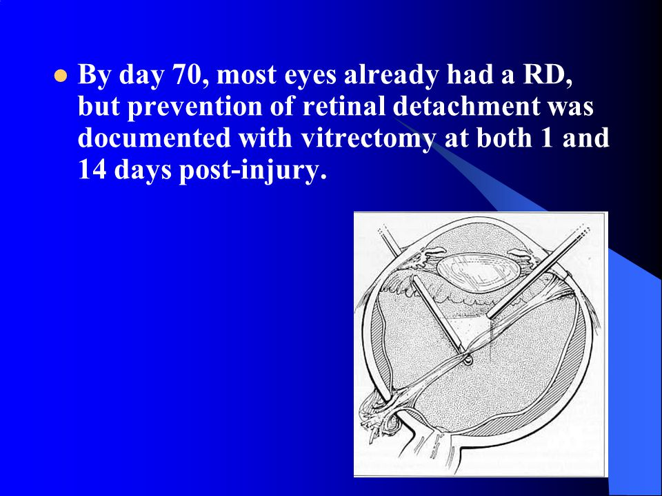 By day 70, most eyes already had a RD, but prevention of retinal detachment was documented with vitrectomy at both 1 and 14 days post-injury.