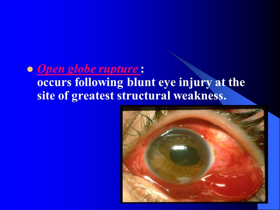 Open globe rupture : occurs following blunt eye injury at the site of greatest structural weakness.