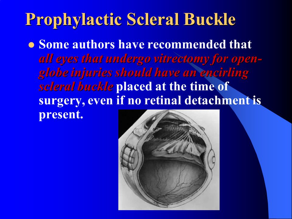 Prophylactic Scleral Buckle