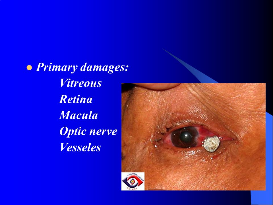 Primary damages: Vitreous Retina Macula Optic nerve Vesseles