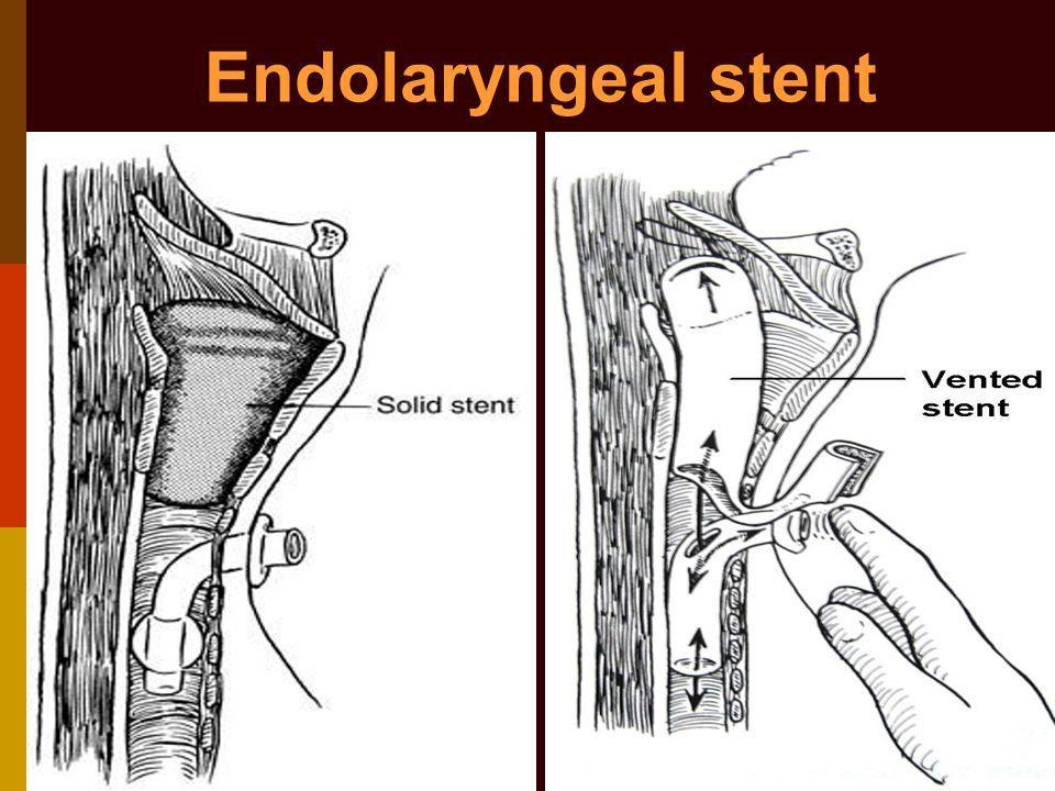 Endolaryngeal stent