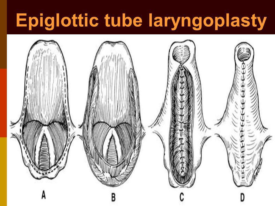 Epiglottic tube laryngoplasty