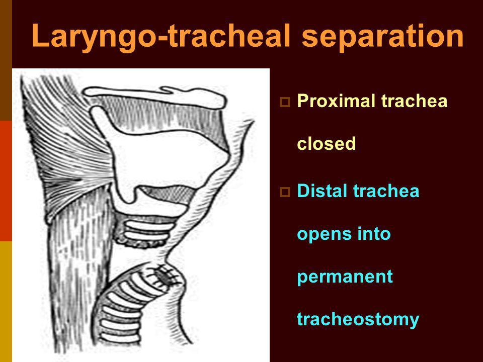 Laryngo-tracheal separation