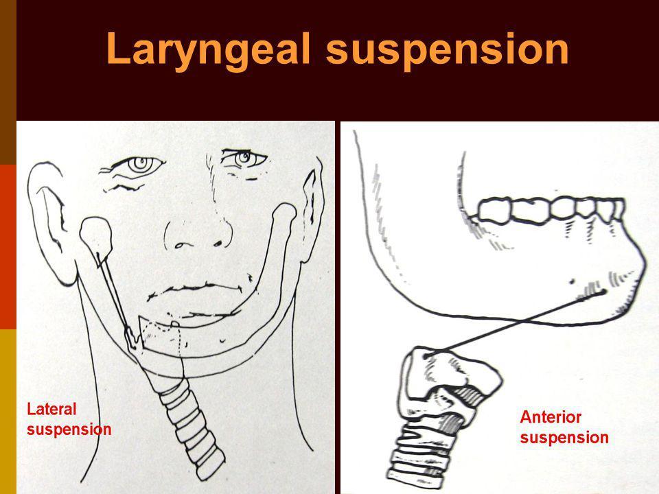 Laryngeal suspension