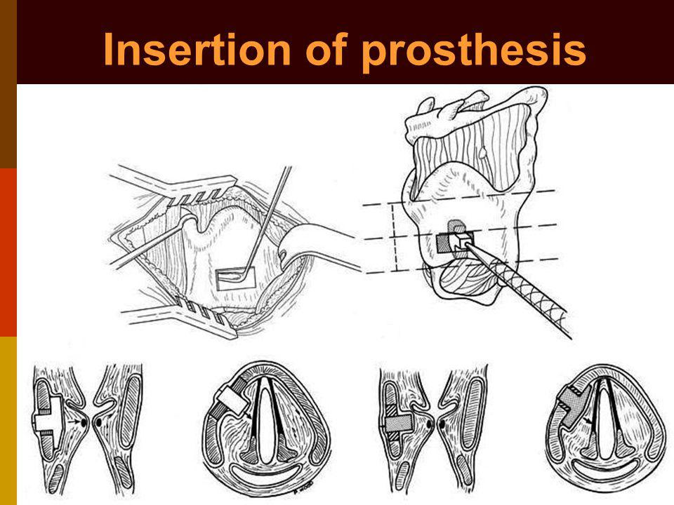 Insertion of prosthesis