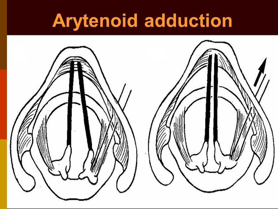 Arytenoid adduction