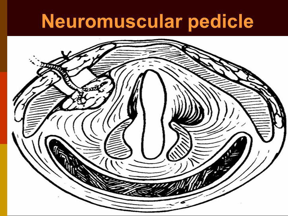 Neuromuscular pedicle