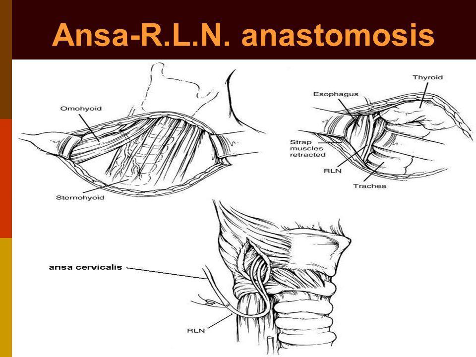 Ansa-R.L.N. anastomosis