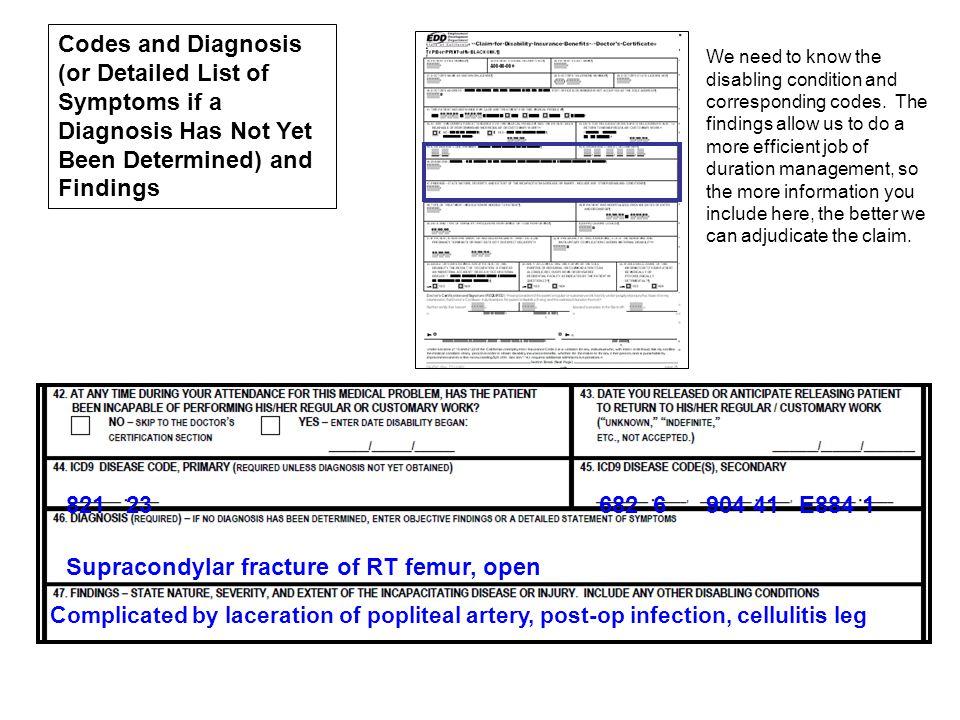 Supracondylar fracture of RT femur, open