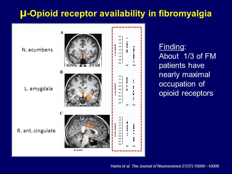 μ-Opioid receptor availability in fibromyalgia