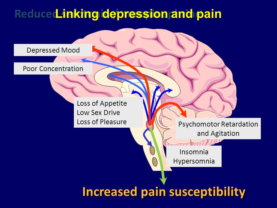 Linking depression and pain Increased pain susceptibility