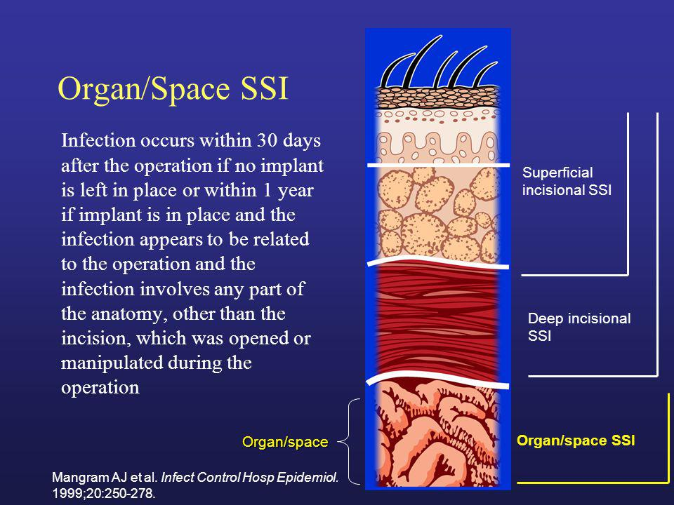 Organ/Space SSI
