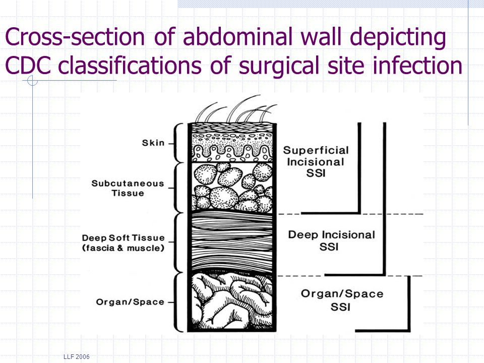 Cross-section of abdominal wall depicting CDC classifications of surgical site infection