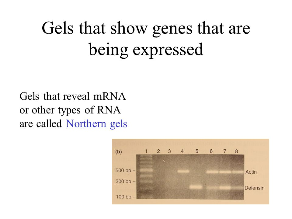 Gels that show genes that are being expressed