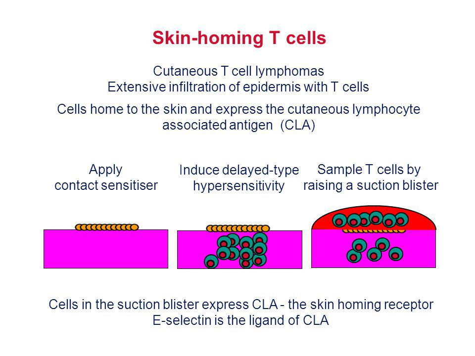 Skin-homing T cells Cutaneous T cell lymphomas