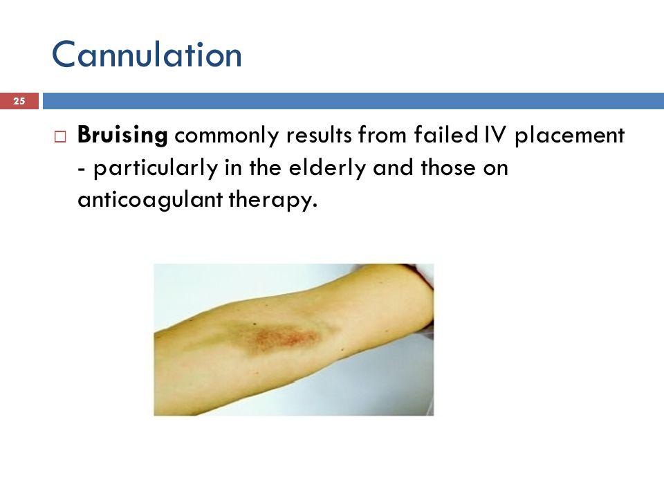 Cannulation Bruising commonly results from failed IV placement - particularly in the elderly and those on anticoagulant therapy.