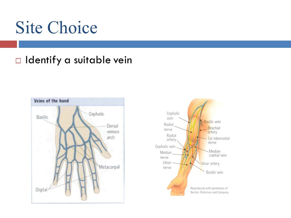 Site Choice Identify a suitable vein