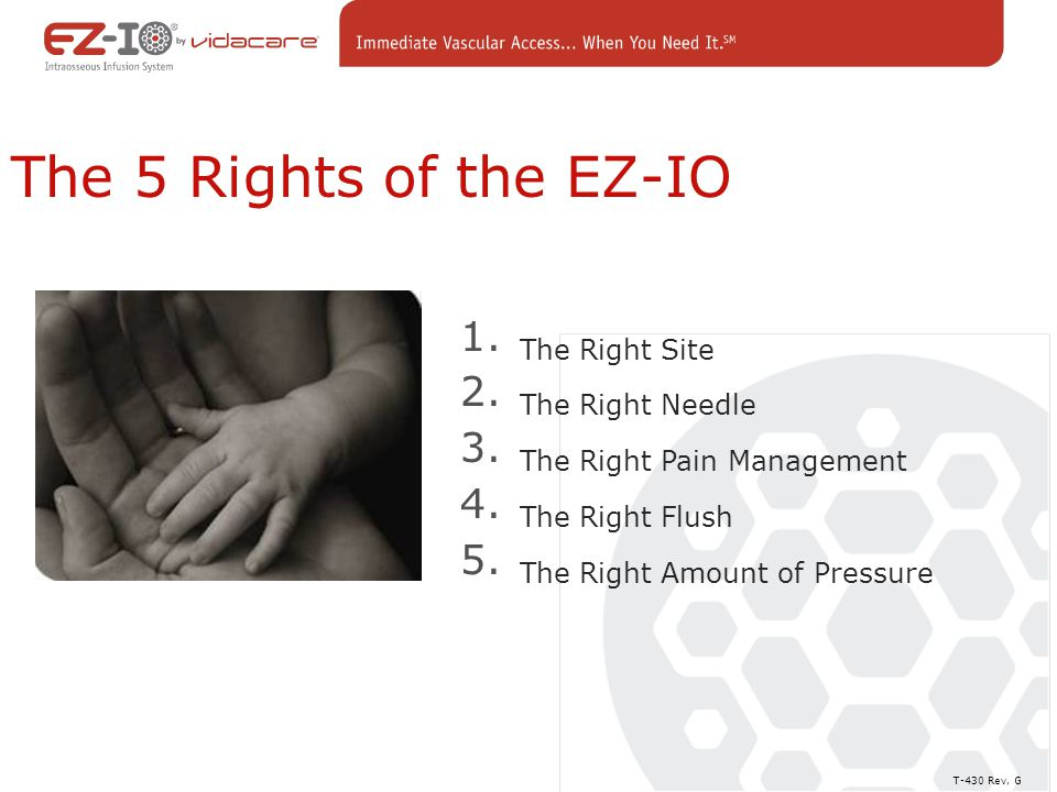 The 5 Rights of the EZ-IO The Right Site The Right Needle