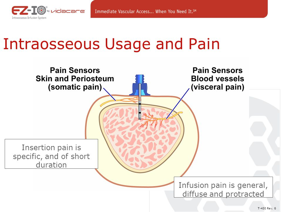 Intraosseous Usage and Pain