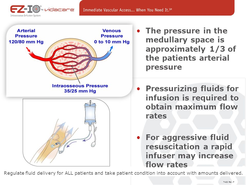 The pressure in the medullary space is approximately 1/3 of the patients arterial pressure