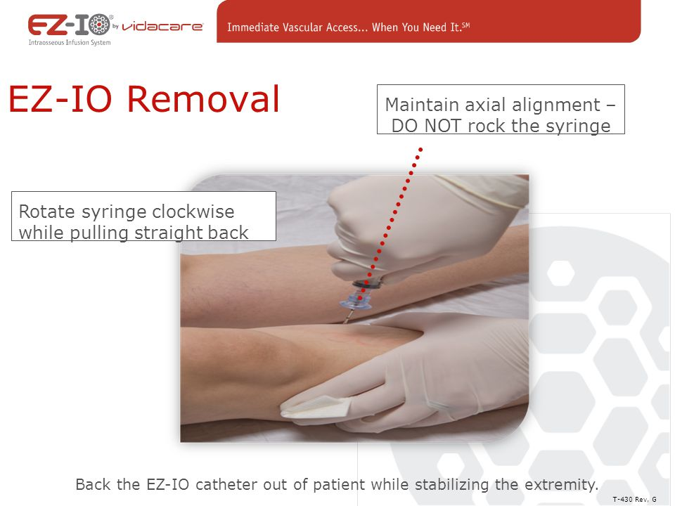 Maintain axial alignment – DO NOT rock the syringe