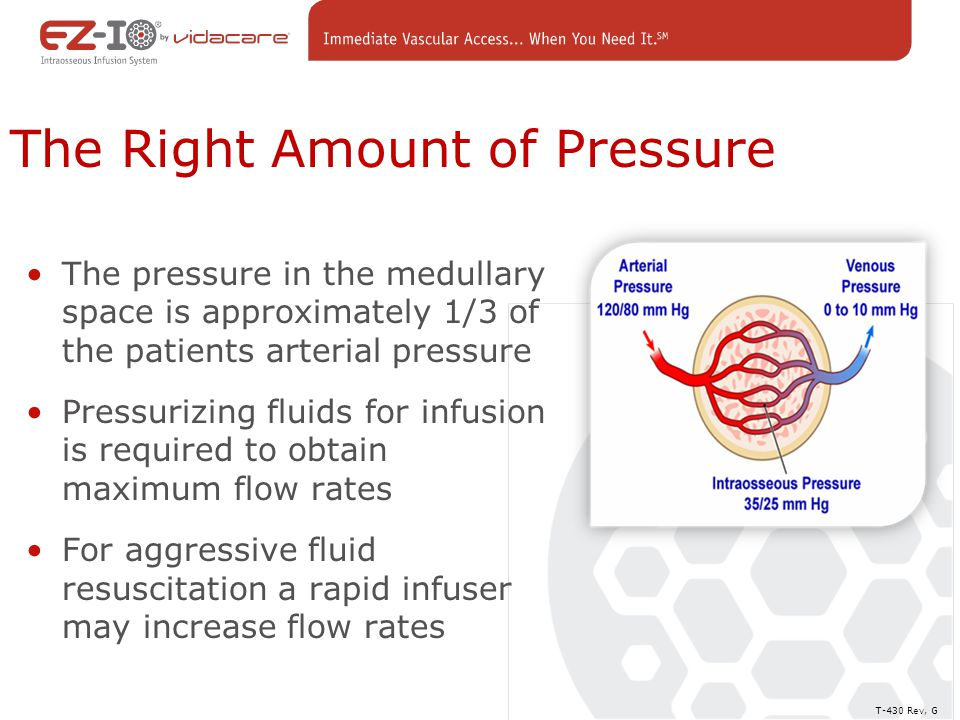 The Right Amount of Pressure