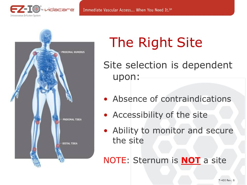 The Right Site Site selection is dependent upon: