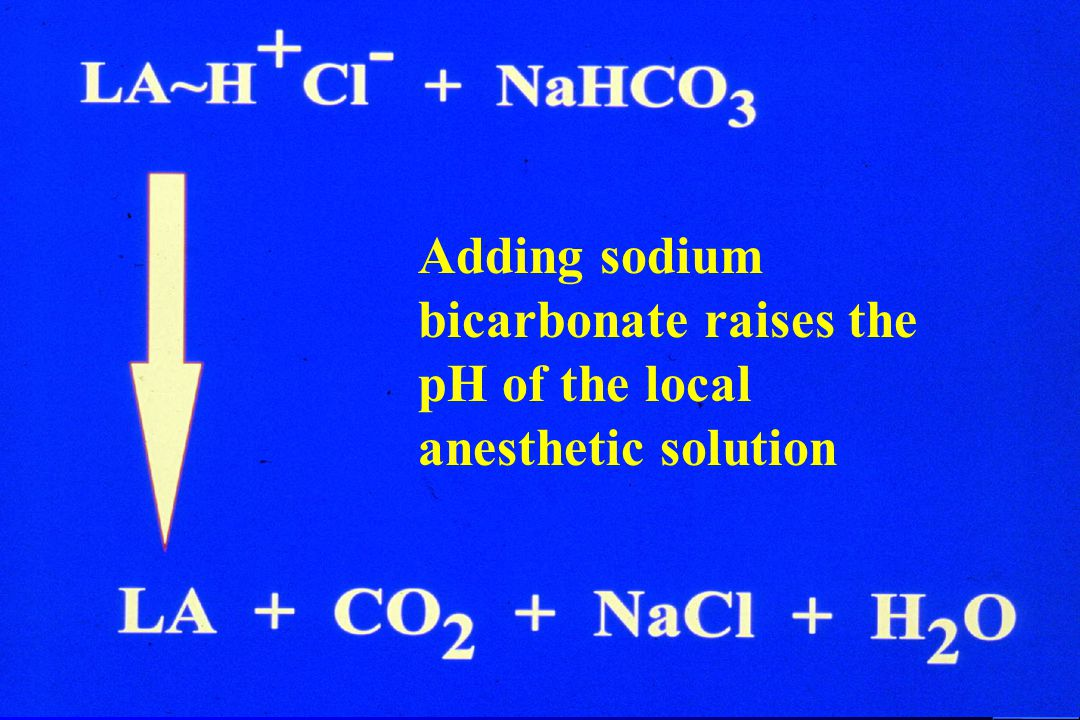 Adding sodium bicarbonate raises the pH of the local anesthetic solution