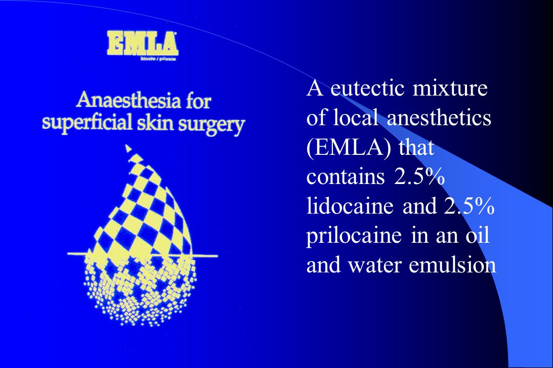 A eutectic mixture of local anesthetics (EMLA) that contains 2
