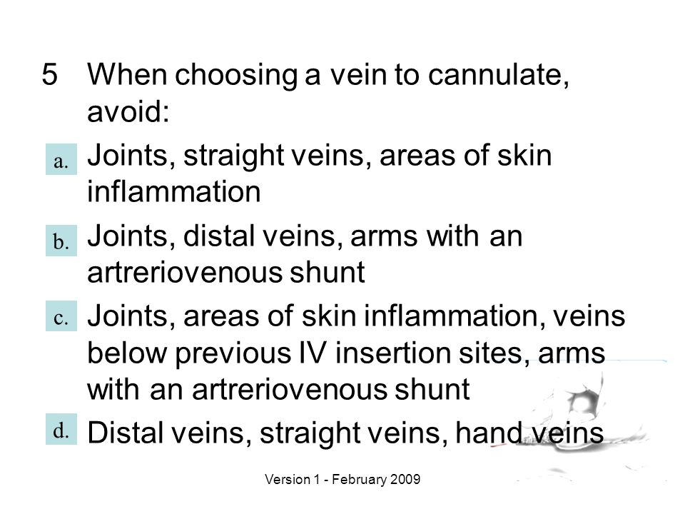 When choosing a vein to cannulate, avoid: