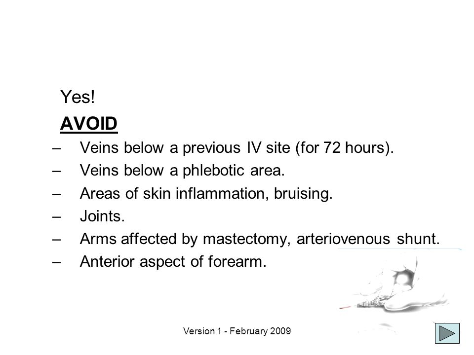Yes! AVOID Veins below a previous IV site (for 72 hours).