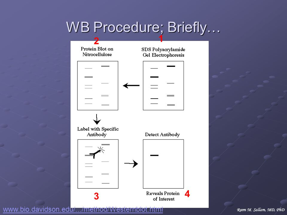 WB Procedure; Briefly…