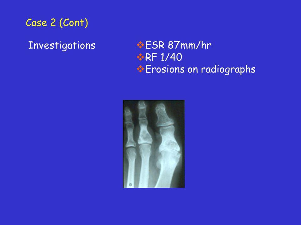 Case 2 (Cont) Investigations ESR 87mm/hr RF 1/40 Erosions on radiographs