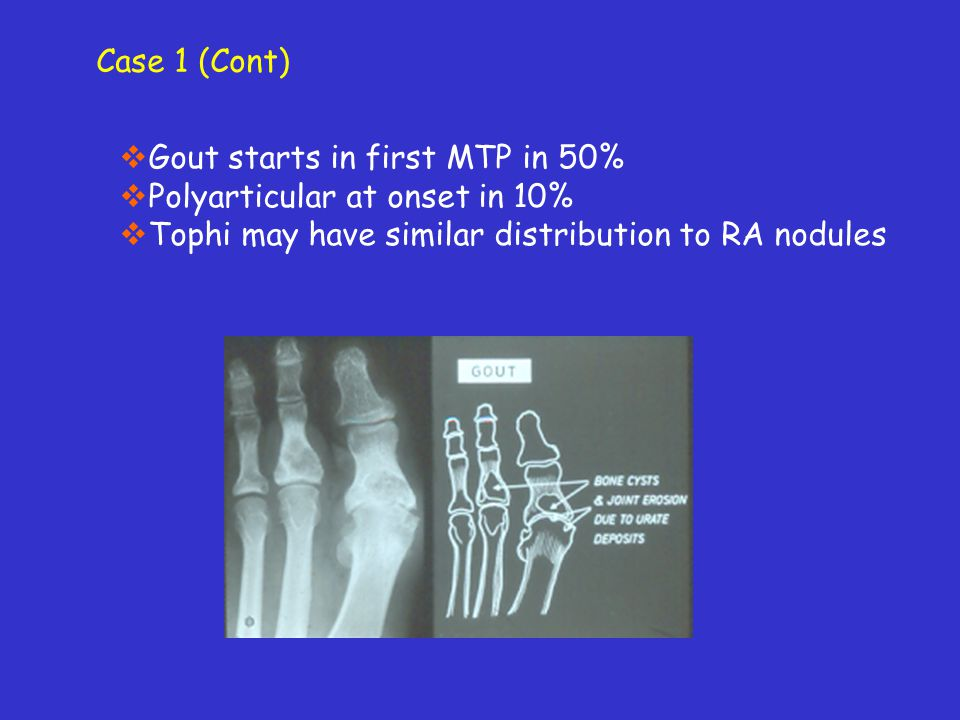 Case 1 (Cont) Gout starts in first MTP in 50% Polyarticular at onset in 10% Tophi may have similar distribution to RA nodules.