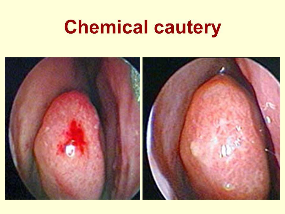 Chemical cautery