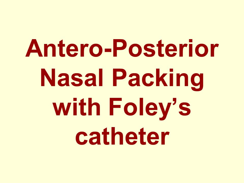 Antero-Posterior Nasal Packing with Foley's catheter