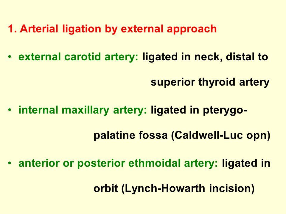 1. Arterial ligation by external approach